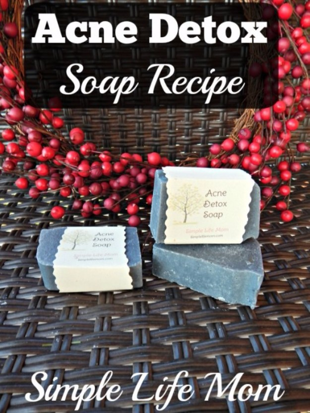 DIY Detox Recipes, Ideas and Tips - Acne Detox Soap Recipe - How to Detox Your Body, Brain and Skin for Health and Weight Loss. Detox Drinks, Waters, Teas, Wraps, Soup, Masks and Skincare Products You Can Make At Home http://diyjoy.com/diy-detox-ideas