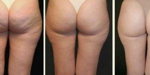 She Whips Up A Miracle Potion To Put On Her Cellulite And Watch The Magic Happen!
