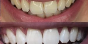 She Finds This Amazing And Cheap Trick To Whiten Her Teeth in 2 Minutes! (Watch!)