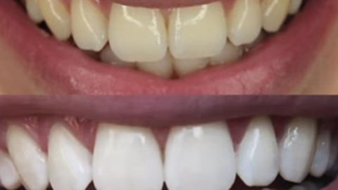 She Finds This Amazing And Cheap Trick To Whiten Her Teeth In 2