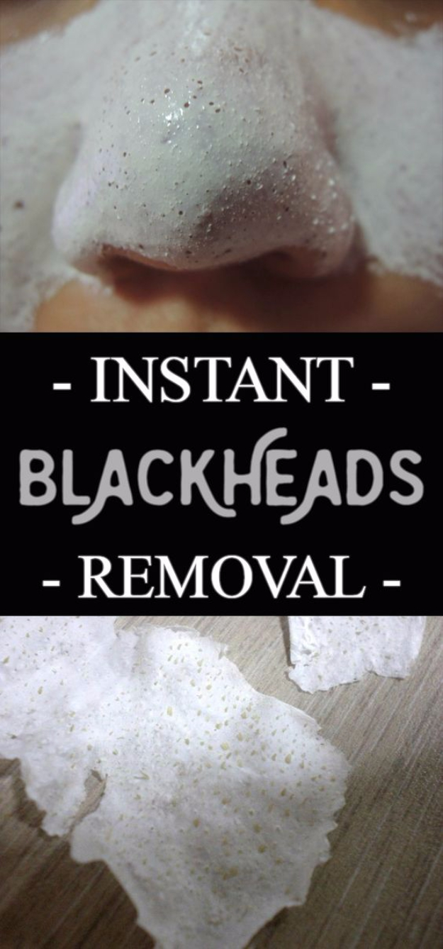 DIY Beauty Hacks - Instant Blackheads Removal - Cool Tips for Makeup, Hair and Nails - Step by Step Tutorials for Fixing Broken Makeup, Eye Shadow, Mascara, Foundation - Quick Beauty Ideas for Best Looks in A Hurry #beautyhacks #makeup