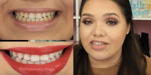 10 Simple Life Hacks For Teeth Whitening That Everyone Should Know…