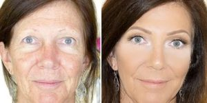 Watch How She Transforms This Lady's Skin With Some Amazing Tips!