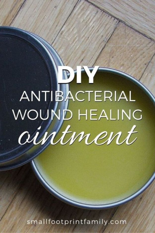 DIY Home Remedies - DIY Wound Healing Ointment - Homemade Recipes and Ideas for Help Relieve Symptoms of Cold and Flu, Upset Stomach, Rash, Cough, Sore Throat, Headache and Illness - Skincare Products, Balms, Lotions and Teas