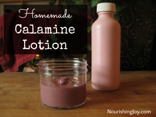 DIY Home Remedies - Homemade Calamine Lotion - Homemade Recipes and Ideas for Help Relieve Symptoms of Cold and Flu, Upset Stomach, Rash, Cough, Sore Throat, Headache and Illness - Skincare Products, Balms, Lotions and Teas