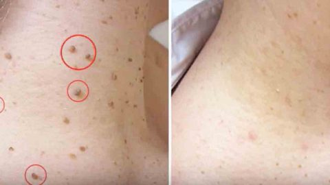 Many Of Us Struggle With Dreadful Skin Tags And These 5 Home Remedies Can Help!   DIY Joy Projects and Crafts Ideas
