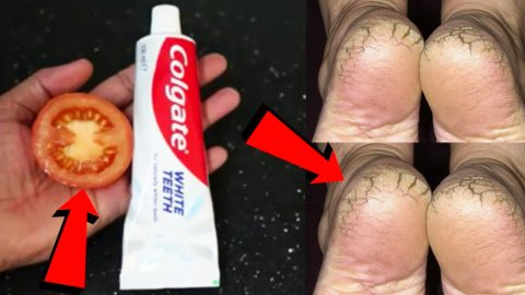 DIY Cracked Heels Remedy Using Toothpaste And Tomatoes | DIY Joy Projects and Crafts Ideas